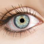 Röda ögon