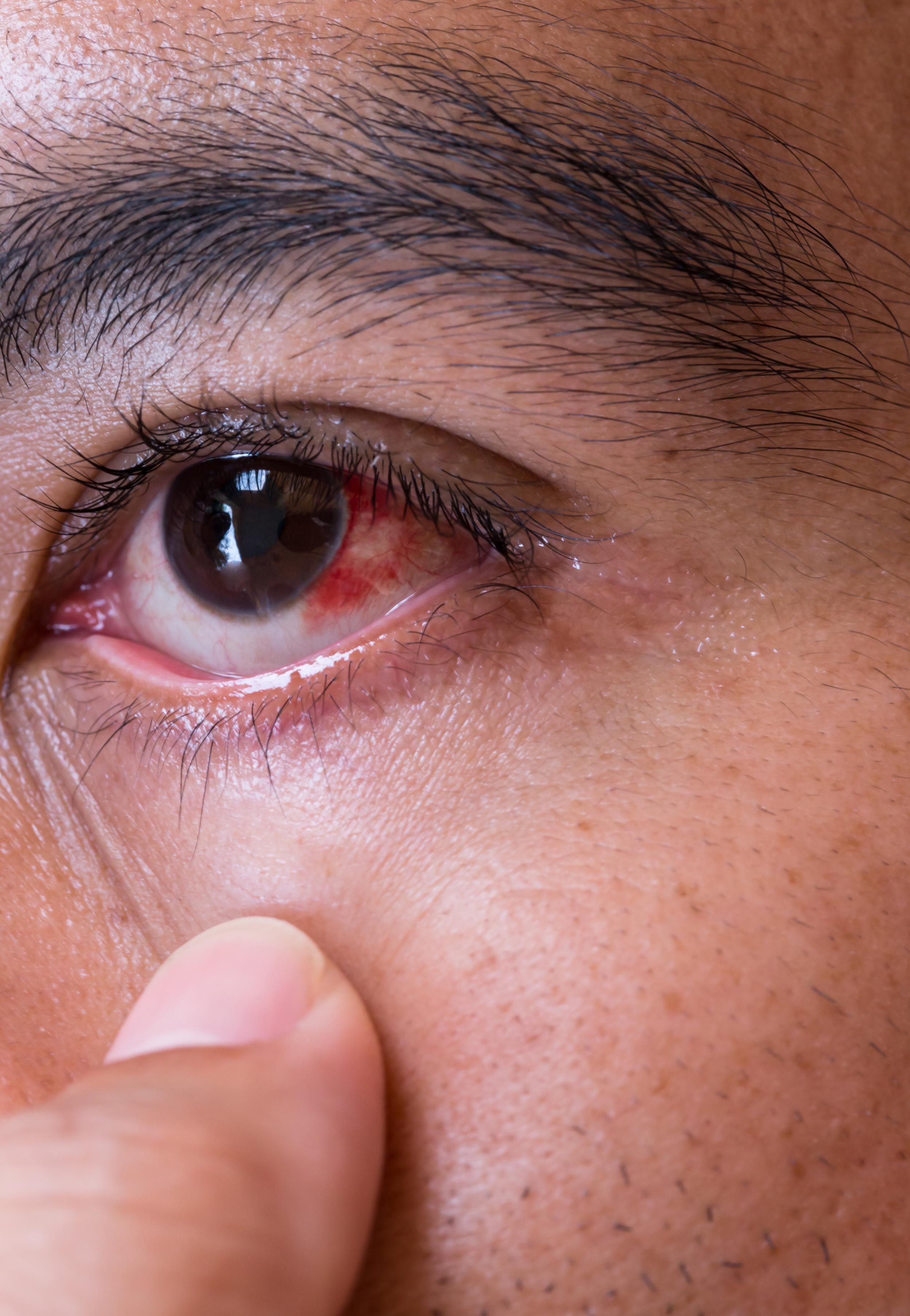 röda ögon efter linser